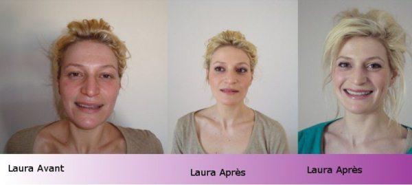 Avant / Après_Laura